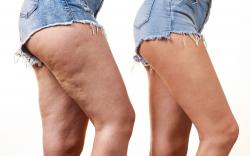 Wie abspecken und kämpfen Cellulite mit ätherischen Ölen