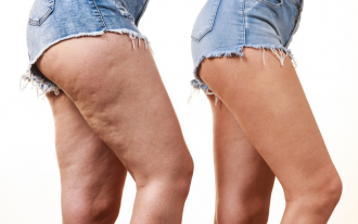 How to slim down and fight cellulite with essential oils