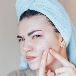 Boutons d'acné : choisir le meilleur traitement acné adolescent