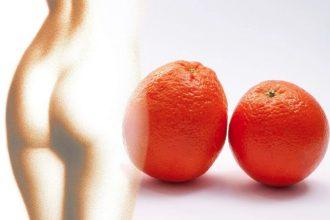 Quel traitement naturel contre la cellulite choisir