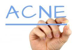 soins naturels pour soigner l'acné