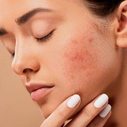Femme présentant de l'acné