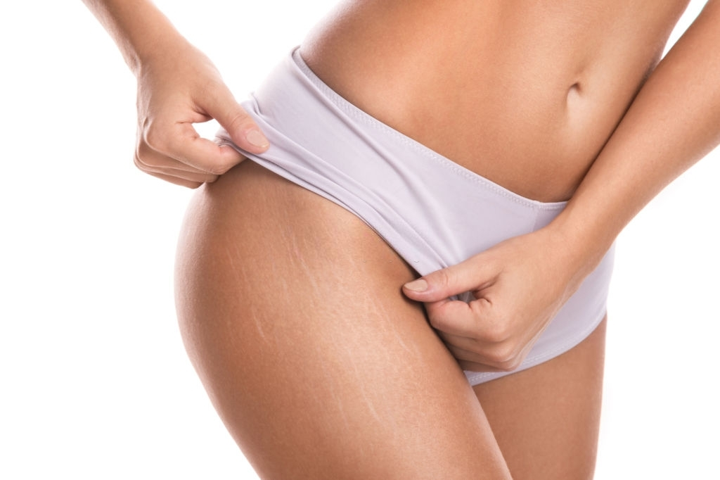 take care of your stretch marks naturally