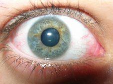Quel traitement naturel contre les yeux secs