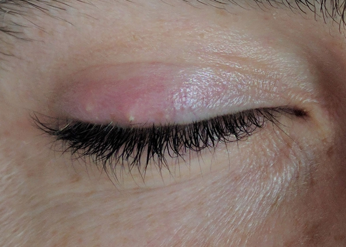 natural remedies to treat stye and chalazion